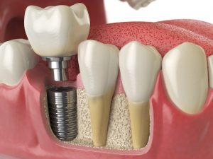 Promenade Dental Care (Fair Lawn, NJ) - Anatomy of human teeth with dental implant