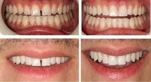 Different shades of teeth