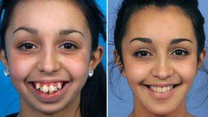 Jaw-Surgery-1280x720