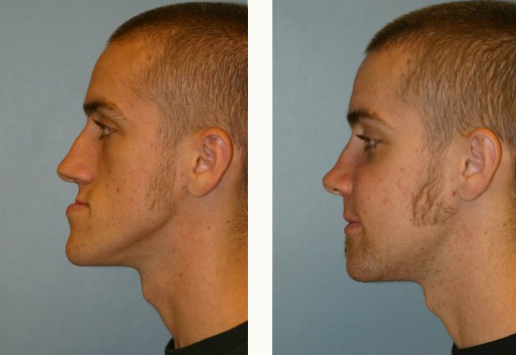 jaw-surgery-and-cheek-implants-3